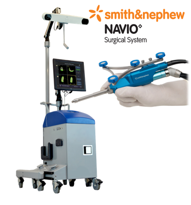 NAVIO Robotic-assisted Surgical System