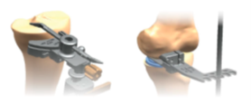 Traditional knee replacement