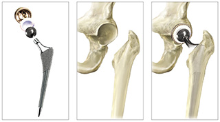 Hip Implant Components